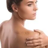 Cicatrizantes y úlceras